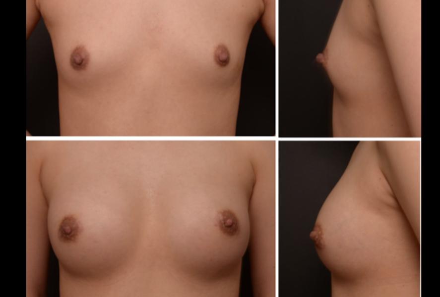 Breast Augmentation in Limassol